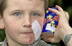 8-year-old Joseph Mains with the firework that injured his face. Photo / Kenny Rodger