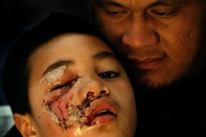 AJ Maninoa has told father Andy he's worried kids at school will laugh at his scars. Photo / Brett Phibbs