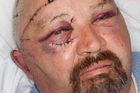 Senior Constable Bruce Mellor suffered multiple skull fractures, broken teeth, a broken eye socket, broken jaw, cuts to his arms and a badly damaged finger. Photo / Supplied