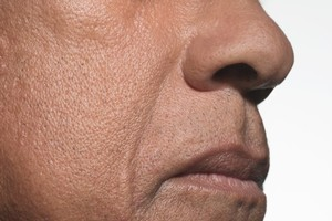 An artificial nose device is smelling out cancer molecules on the breath of sufferers. Photo / Thinkstock