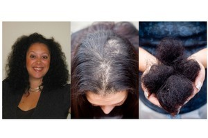 Kirstine Morris suffered major hair loss after a straightening treatment in a hair salon. Photos / Supplied, Greg Bowker