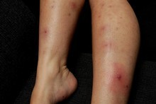 Ivana Aldridge was left with sores on her legs after a treatment at Hair Co salon . Photo / Brett Phibbs