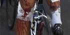 View: Tour de France carnage
