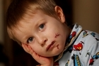 'It really hurted,' says Ben Oliver of the dog attack that left him with four facial bites. Photo / Greg Bowker