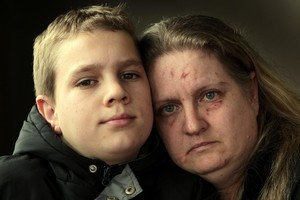 Marcelle Baardt - her face scarred from the attack - and son Ryno at home yesterday. Photo / Brett Phibbs