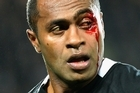 Sitiveni Sivivatu suffered a facial injury while playing for New Zealand against Australia at Eden Park. Photo / Getty Images
