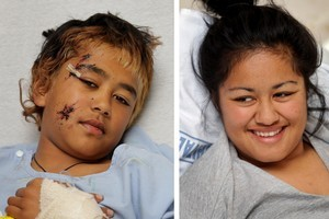 Anaru Smith (left) and his sister Sasha recover in hospital after the collision on Monday which left more than 30 passengers injured. Photo / Alan Gibson