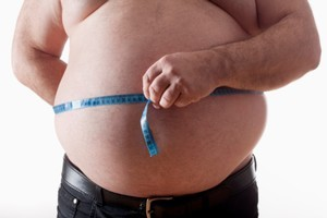 New Zealand's obesity rate increased surged ahead over the past decade, according to a new report. File photo / Thinkstock