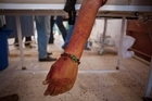 The hand of a dead revolutionary fighter is seen at a field hospital near Sirte. As the push continues into Sirte, the NTC announced it had found a mass grave containing 1700 bodies. Photo / AP