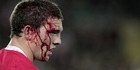 View: Was this the bloodiest World Cup match yet?
