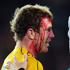 David Pocock of the Wallabies receives medical attention for his bloodied face. Photo / Getty Images