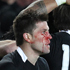 All Black Cory Jane shows the scars of conflict as his teammates celebrate Ma'a Nonu's opening try. Photo / Greg Bowker