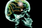 Psychologist Daniel Kahneman lays out how we can avoid the cognitive traps that lead us astray. Photo / Thinkstock