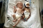 Kyan (L) and Axel were born with twin-to-twin transfusion syndrome. Photo / Janna Dixon