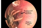 This horse tick in a vet's ear had to be removed with a small hook as a last resort. Photo / NZ Medical Association