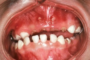 A child's rotten teeth caused by use of a bottle and sugary drinks. Photo / Supplied