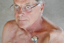 Bill Aylward holds one of the many artificial shoulder joints he has had and lost due to superbug infections after operations on his left shoulder. Photo / Steven McNicholl