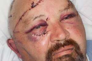 Taihape police officer Bruce Mellor after he was attacked with a machete. Photo / Supplied