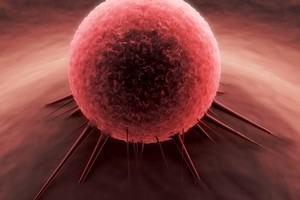 Cancer is the most feared disease. Photo / Thinkstock
