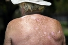 Cancer is the health issue New Zealanders fear most, a survey says. Photo / Bay of Plenty Times