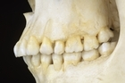 DNA samples are being taken to try to identify the skeleton. Photo / Thinkstock