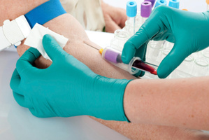 Researchers believe they've developed a blood test that is between 85 per cent and 90 per cent accurate. Photo / Thinkstock