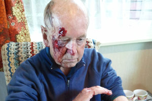 Police have released this graphic photo of an 87-year-old Waikanae man's bloody injuries after he was attacked by a group of teens. Photo / supplied