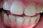 Damage caused to tooth enamel is irreversible. Photo / Thinkstock