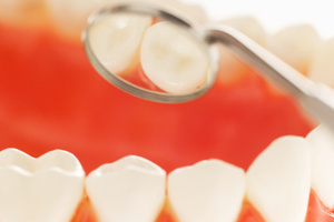 Acidic food and drinks contribute to dental problems for Kiwis. Photo / Thinkstock
