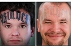 Former white supremacist Carl Drewett's in-your-face tattoo (left) is nearly gone after four treatment sessions. Photo / Martin Hunter
