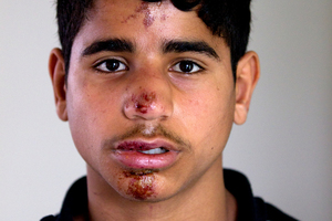 Abbas Alethary, 13, came to bleeding and dazed and was taken to hospital. Photo / Steven McNicholl