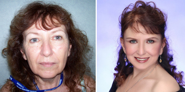 Christine Fiori before and after her cosmetic surgery. Photo / Supplied