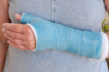 The Multiprotector can be inflated, meaning protection for a broken bone while waiting for a cast. Photo / Thinkstock