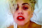 Lady Gaga showed off her black eye on Twitter. Photo / Twitter