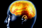 The brain can heal itself better than first thought. Photo / Thinkstock