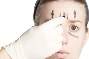 Should plastic surgery be banned for those under 18? Photo / Thinkstock