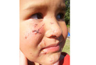 Tane Saneva, now 4, needed surgery to repair facial injuries after he was attacked by a dog at his father's property last year. Photo / Supplied