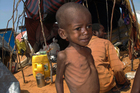 Western greed is partly to blame for children starving in places such as Somalia. Photo / AP