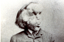 Joseph Merrick, the Elephant Man. Photo / AP