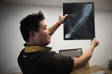 Victim Sung Jin Kim with his x-ray. Photo / APN