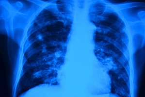 TB is second only to HIV/AIDS as the greatest infectious killer worldwide. Photo / Thinkstock