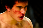 Joesph Spiers' cuts are typical of about half the injuries in MMA. Photo / Brett Phibbs