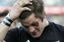 Richie McCaw has been assaulted seven times in three years. Photo / File