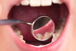 Open wide and say 'there's no government money to fund dental school expansion'. Photo / Thinkstock