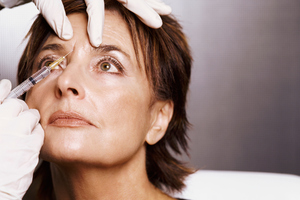 Botox is a touchy topic.Photo / Thinkstock