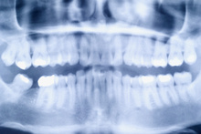 Dental x-rays aren't always necessary.Photo / Thinkstock