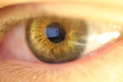 In iridology, the iris is studied for indications of bodily health and disease. Photo / Wikimedia Commons image posted by user Mobentec