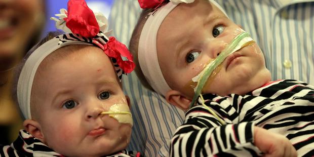 Allison, (left) and Amelia, the nine-month-old girls who were formerly conjoined twins make their debut at a hospital in Philadelphia. Photo / AP