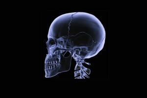 Need a new jaw? Try printing one. Photo / Thinkstock