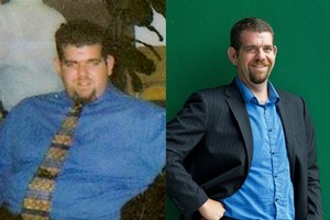 Before and after shot of Damien Martin who lost over 100kg of weight. Photo / Supplied/Brett Phibbs
